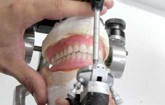 Prothèses dentaires conventionnelles