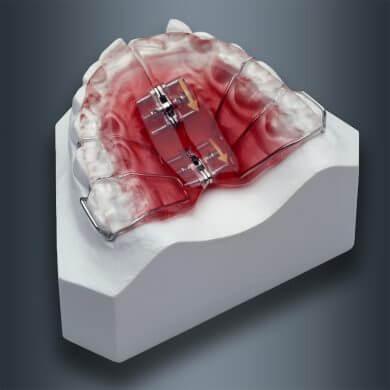 orthodontie-2