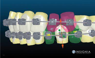 orthodontie-3
