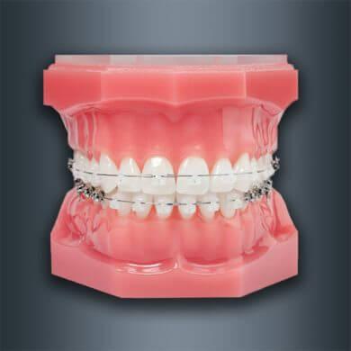 orthodontie-4